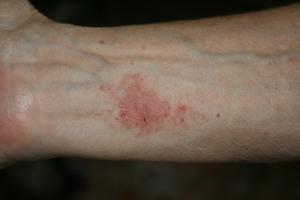 Week old brown recluse spider bite